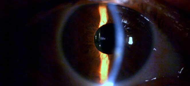 44f52893b Presbiopia – o que é, sintomas, tratamento, cirurgia, laser