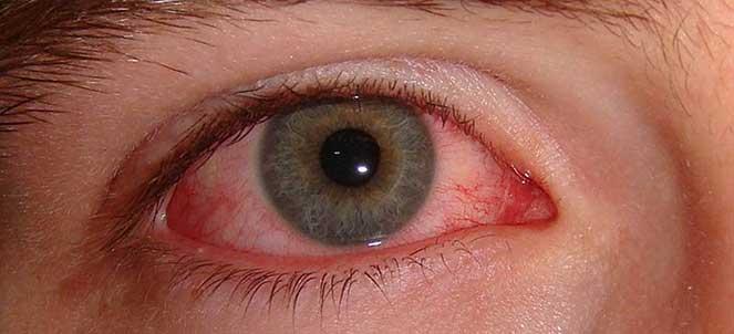 Olhos vermelhos, vermelhidão no olho