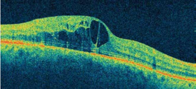 O melhor para edema macular é tratamento qual