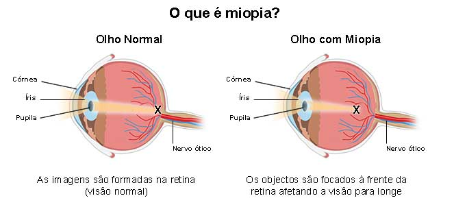 733c2dc3c Miopia - o que é, sintomas, causas, graus, cura, correção