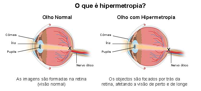4400bccd48c27 Hipermetropia - o que é, sintomas, causas, cirurgia, cura