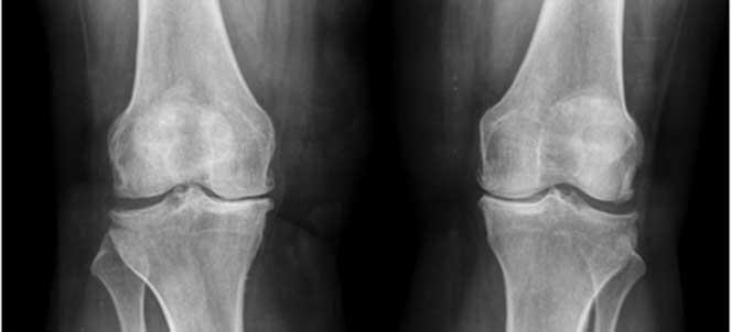 artrose inicial