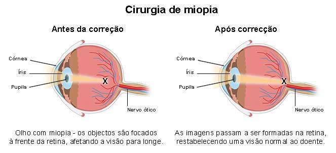 dc86bab60 Cirurgia de miopia - operação, correção laser, riscos, preço