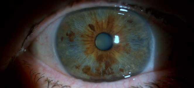 f8eed084aa5f8 Catarata nos olhos - fotos