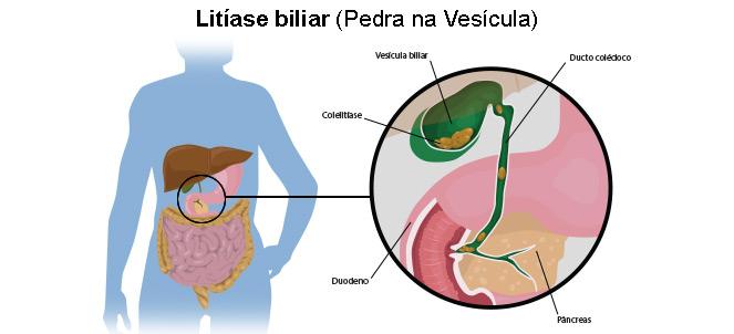 dieta para pacientes con calculos biliares