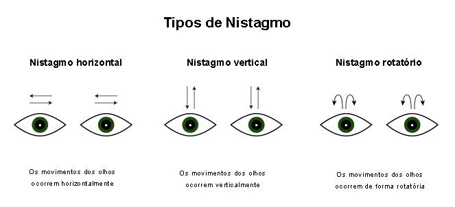 aac27c40f0f Nistagmo - o que é