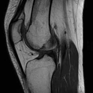 quanto custa um exame de ressonância magnética do joelho