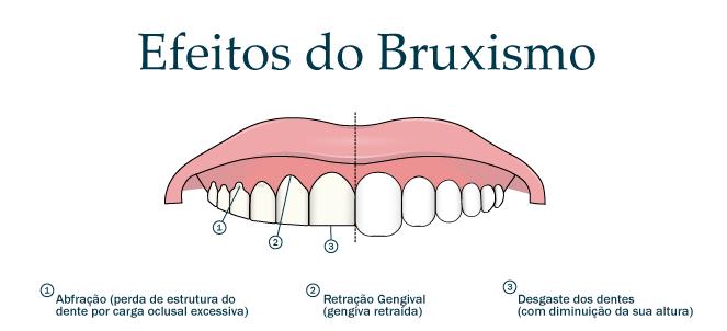 Bruxismo (ranger os dentes) - causas, sintomas, tratamento ...