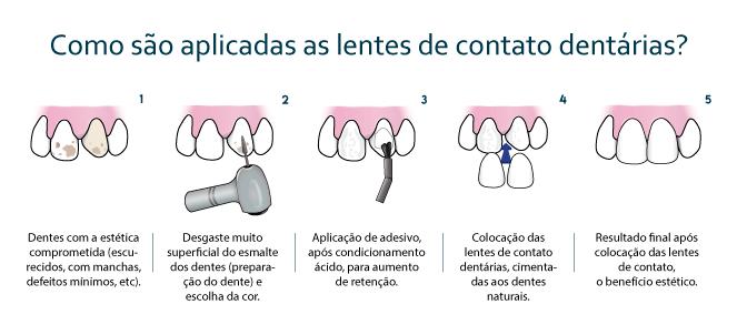 dfe632537 Lente de contato dental ou dentária (lentes para os dentes)