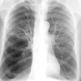 sintomas de enfisema pulmonar moderado