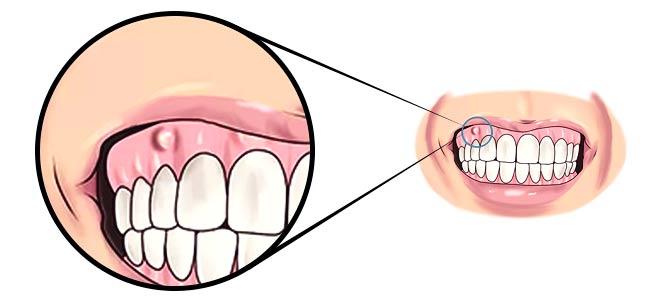 d44392191 Abcesso dentário ou abscesso dentário - Abcesso dente