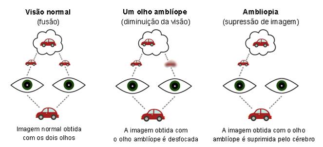 0840c78fa Ambliopia ou olho preguiçoso - o que é, tratamento, tem cura?