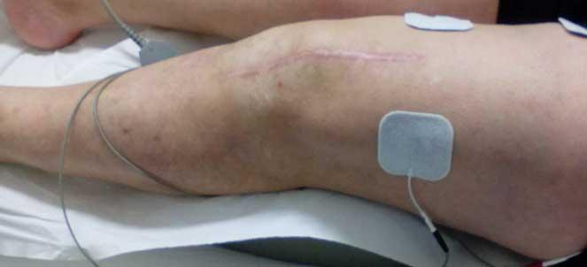 Cirurgia após com edema