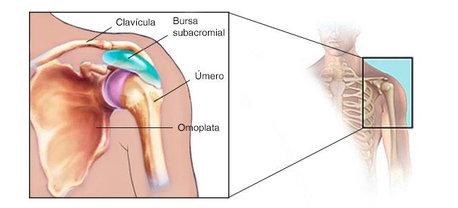 bursite dor no ombro como curar