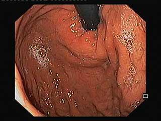 endoscopia digestiva alta para que sirve