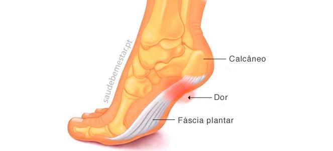 Inchaço diagnóstico diferencial do tornozelo unilateral de