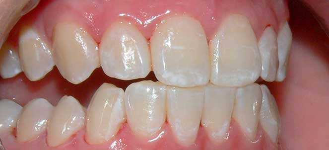 Fluorose Dentaria Nos Dentes O Que E Causas Tratamento