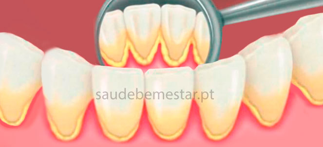 Tartaro Nos Dentes Ou Caculo Dental O Que E Como Remover