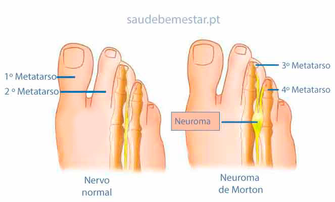 Fotos de Neuroma de Morton