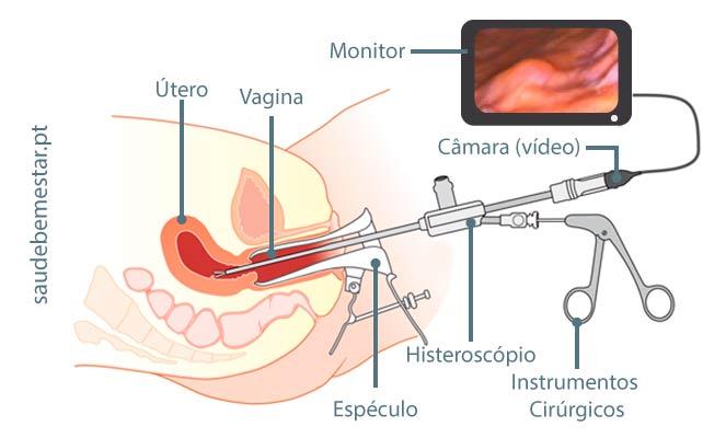 pólipo uterino maligno sintomas