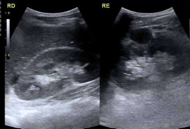 Dieta para ecografia abdominal y renal