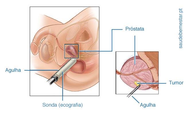 es elevada psa en tumores distintos de la próstata