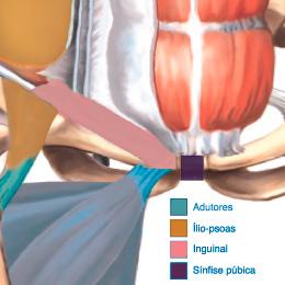 hernia inguinal pode prejudicar a prostata