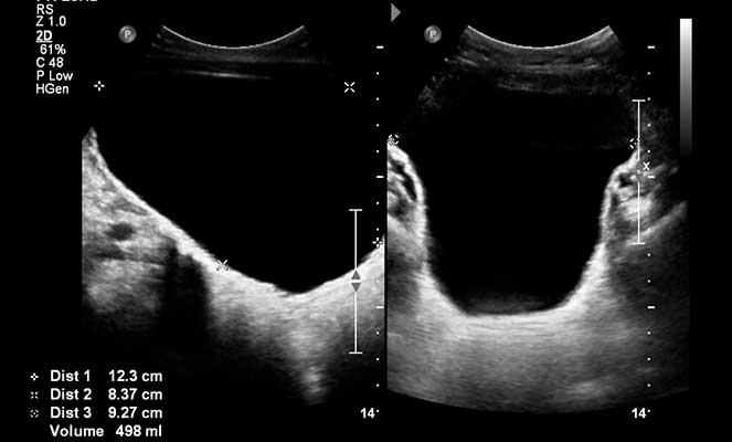 video de cálculos en la próstata y vejiga por ultrasonido