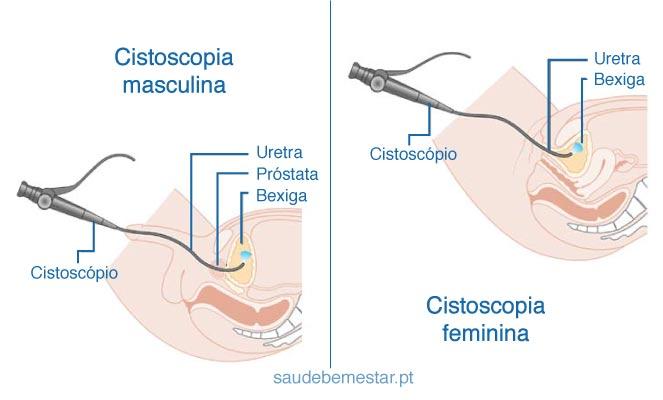 síntomas de próstata inflamada videos