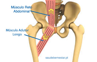 Músculos Adutor Longo e Reto abdominal