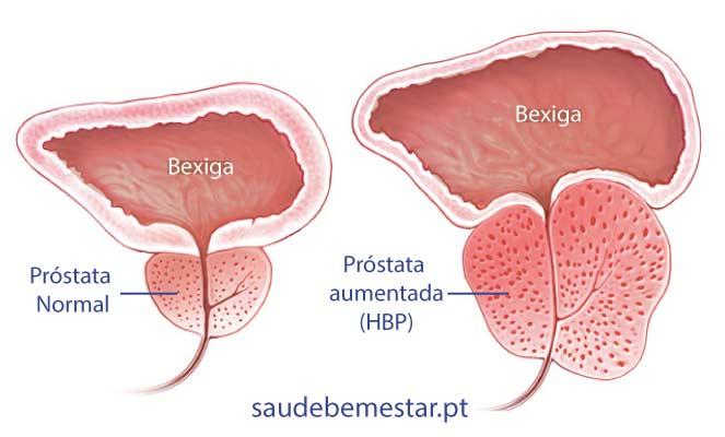 Focal Salvage HDR brachyterápia a prosztatarák kezelésére